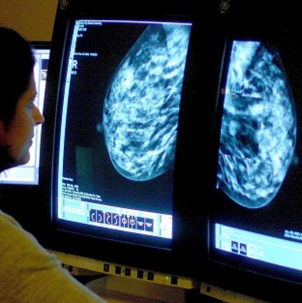 Thurrock Gazette: A consultant analysing a mammogram.
