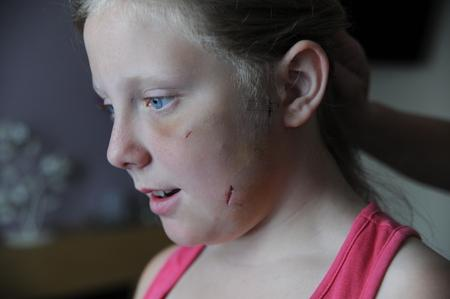 Young girl left terrified after being mauled by dog